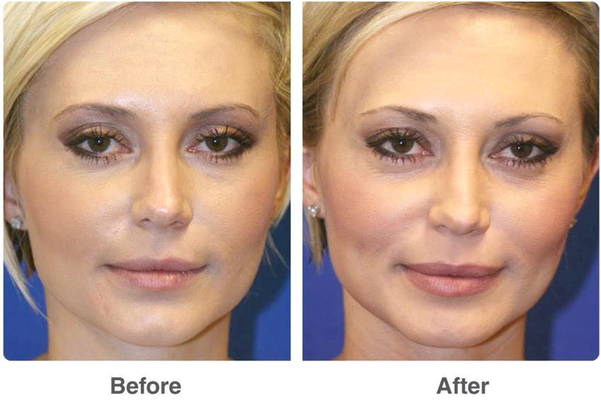 Co2 Fractional Laser Treatment Dubai Dermatology Clinic